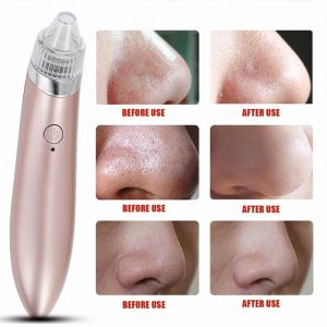 best electric blackhead vacuum
