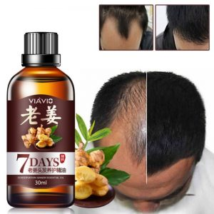anti hair loss oil