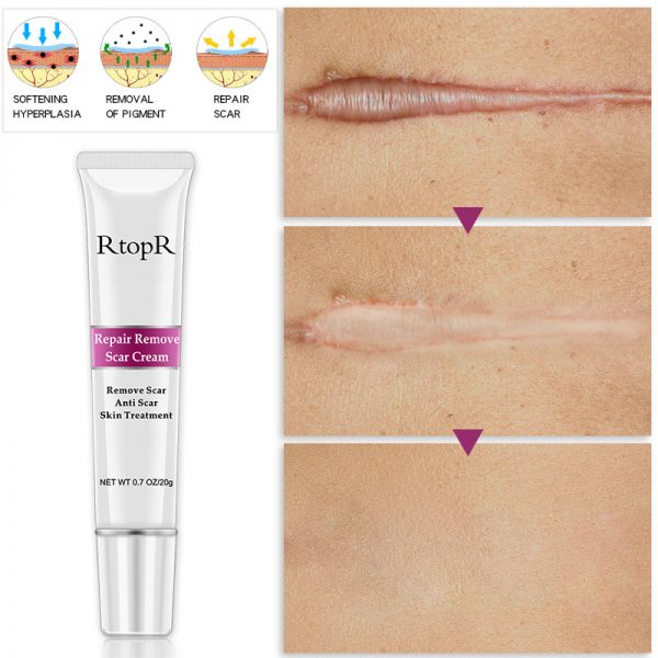 scar removal cream for face