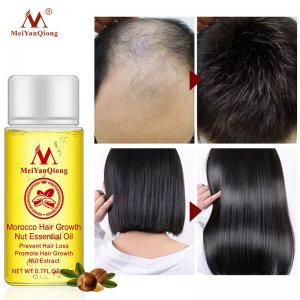buy hair growth products online