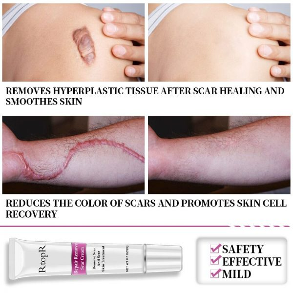 best surgical scar removal cream