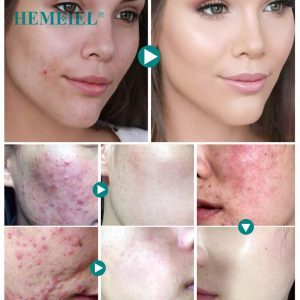 acne removal cream